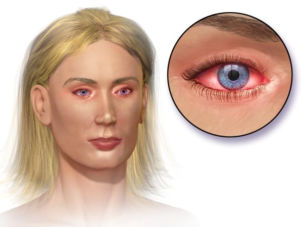 Allergic Conjunctivitis