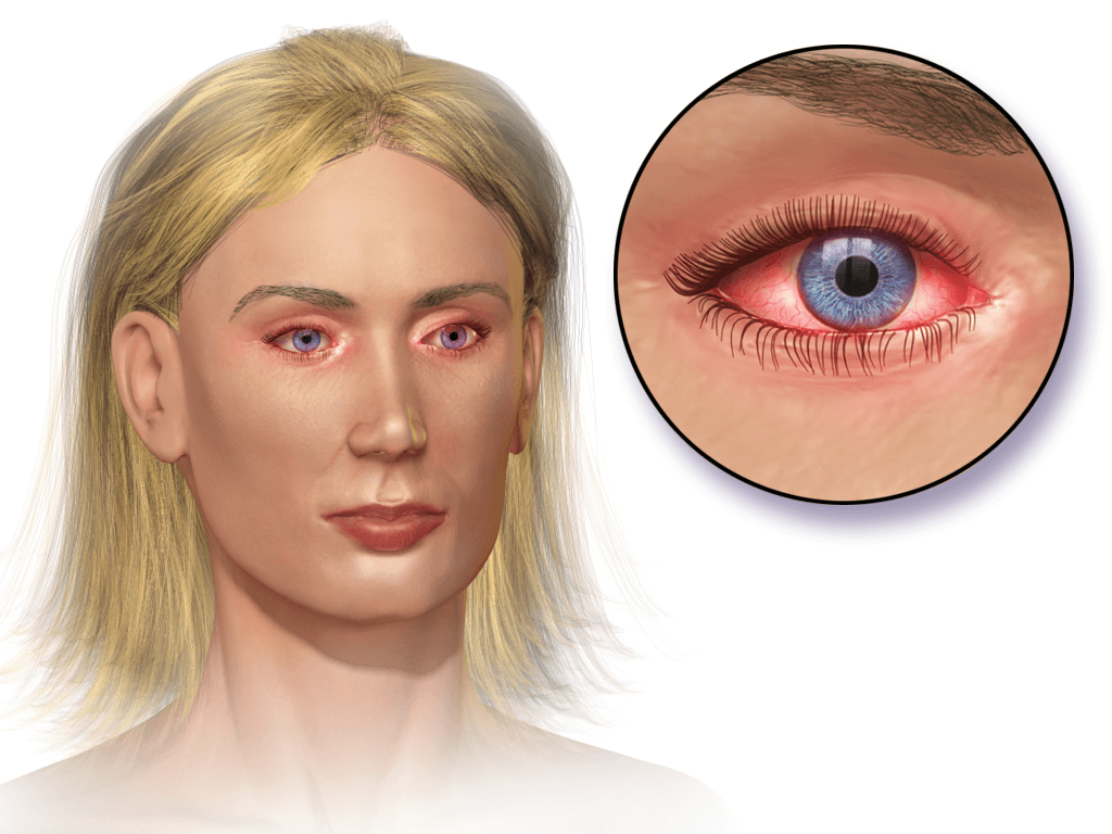 Allergic Conjunctivitis that is commonly known as Allergic Pink Eyes from pollen allergy common in sprint months of may april and june in the US. Spring pollen allergy.