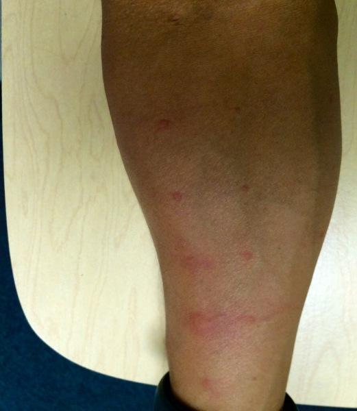 skin test arm 1 allergy test